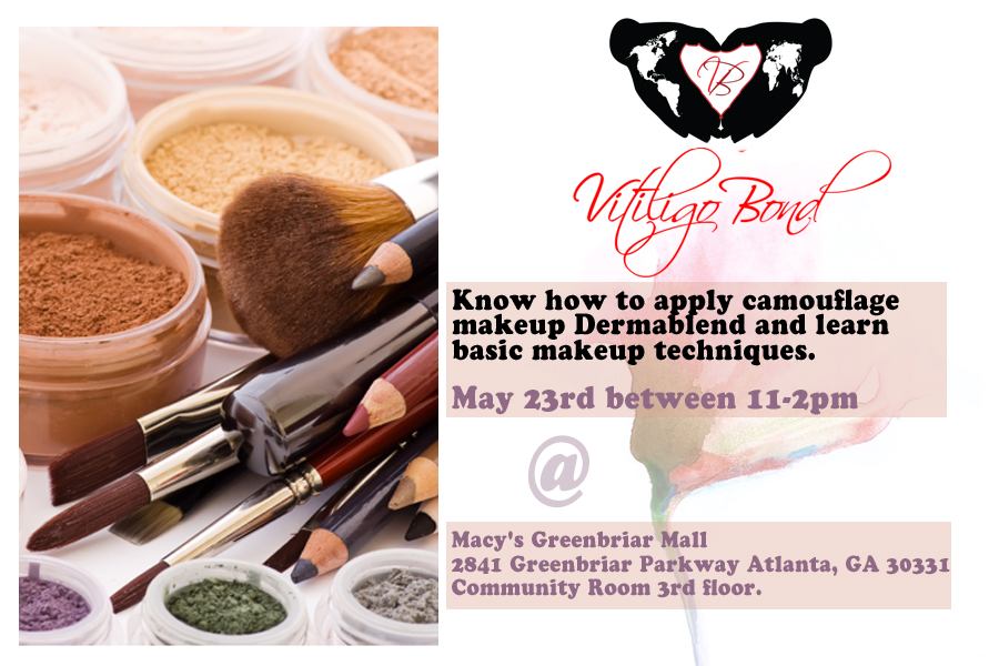 Vitiligo Bond's Camouflage Makeup Workshop