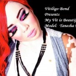 Vitiligo Bond Presents My Vit is Beautiful!