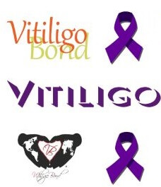 VBI's FAQ's & Vitiligo Support Resources