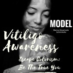 vitiligo-awareness